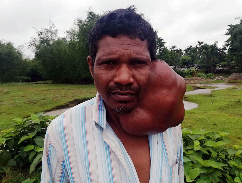 गालामा ठूलो टयुमर, आर्थिक अभावले भएन उपचार
