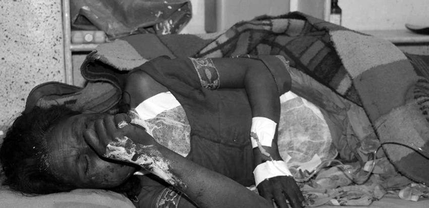 झारफुकको नाममा क्रूर यातनाः रड, पाइप र झाँझर तताएर डाम्दा एकको मृत्यु, दुई गम्भीर